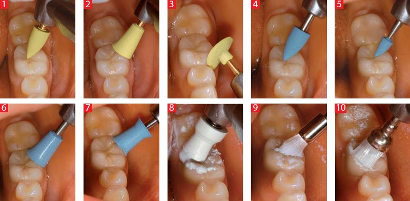 Подпилить зуб в домашних условиях