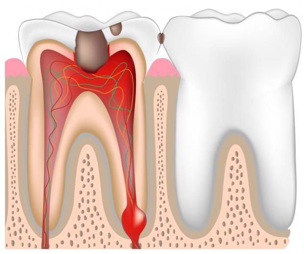 Инфекция нерва зуба